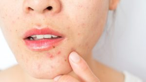 acne on face due to hormonal imbalance